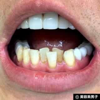 【歯を白く】ホワイトニング歯磨きジェル「キラビアンカ」体験開始04