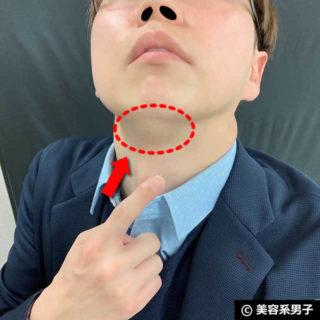 【小顔効果/二重アゴ】脂肪を溶かす注射「BNLS neo」体験レポート11