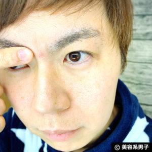 【体験終了】赤ニキビ薬用アッカノン1本使い切った効果-口コミ02