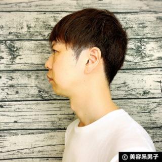 【体験10日目】脂肪溶解注射を効果的に受ける方法-東京中央美容外科01