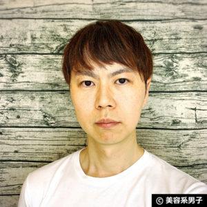 【体験10日目】脂肪溶解注射を効果的に受ける方法-東京中央美容外科02