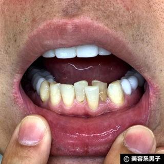【ホワイトニング歯磨き粉】オーラパール+電動歯ブラシの結果01
