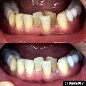 【ホワイトニング歯磨き粉】オーラパール+電動歯ブラシの結果03