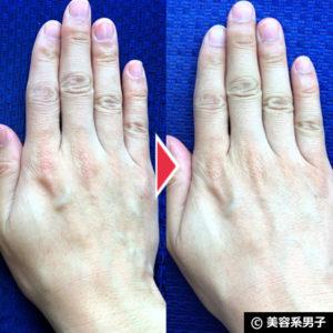 【体験28日目】ブドウの力で肌が若がえる!?「iGS4000Gel」の効果02