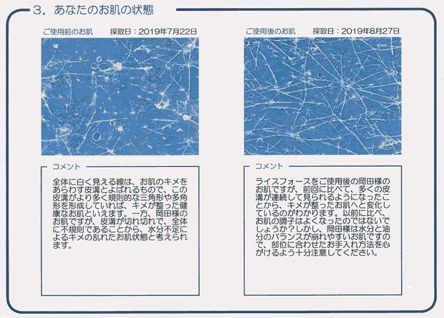 【体験30日目】ライスフォース「お肌分析」キメは復活するの?効果-03