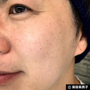 【日本上陸】ロダン アンド フィールズの効果を体験してみたよ。-14