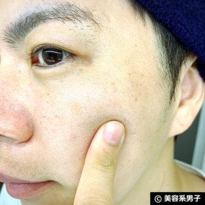 【美白】高級美容液を使わず美肌になるには?男の医療スキンケア-01