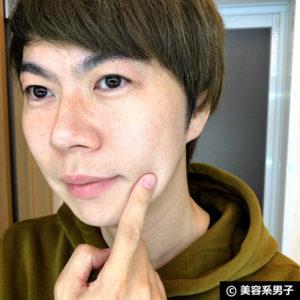 【美肌】ハイドロキノン+トレチノインの炎症にトラネキサム酸の効果-02