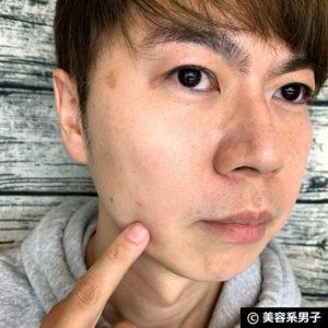 【スキンケア】ニキビを隠すシール「ゼロスポットパッチ」口コミ-05