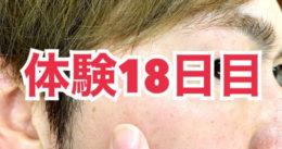 【体験18日目】日本製 シミ消しクリーム「White HQ Cream」効果