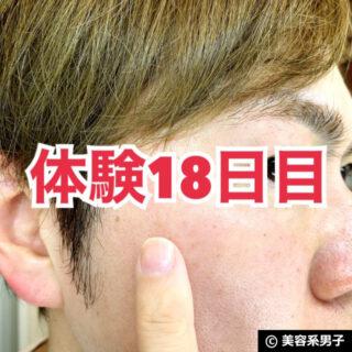 【体験28日目】日本製 シミ消しクリーム「White HQ Cream」効果-00