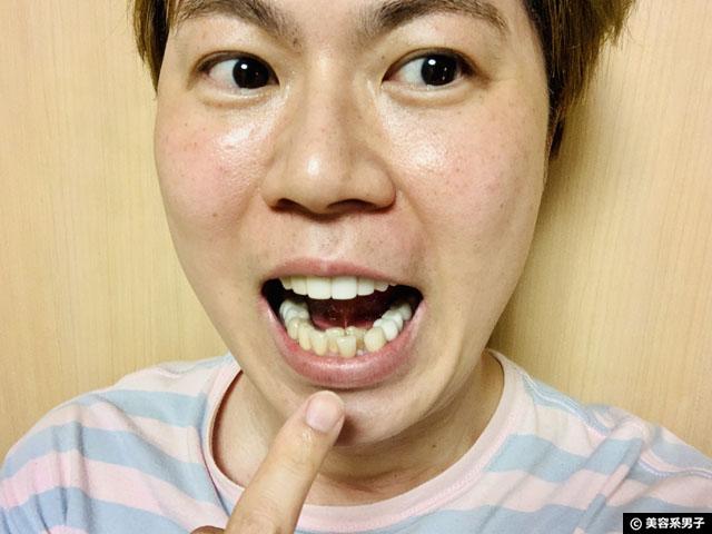 【体験12日目】歯科専用ホームホワイトニング剤 TAB-LAB CP10 口コミ-06