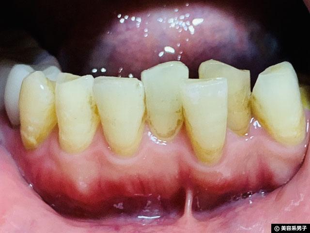 【体験12日目】歯科専用ホームホワイトニング剤 TAB-LAB CP10 口コミ-07
