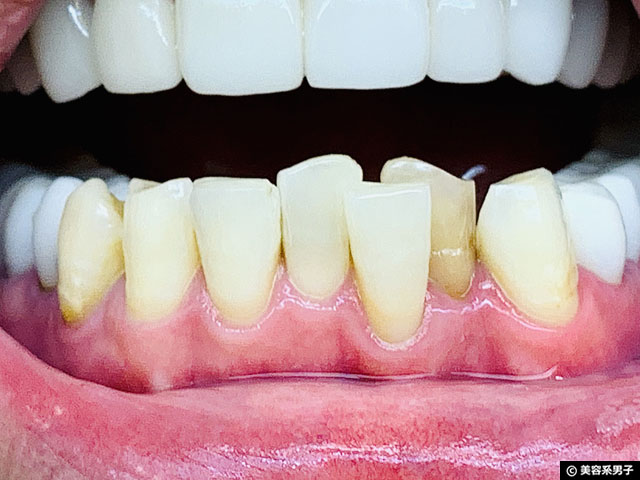 【体験12日目】歯科専用ホームホワイトニング剤 TAB-LAB CP10 口コミ-09