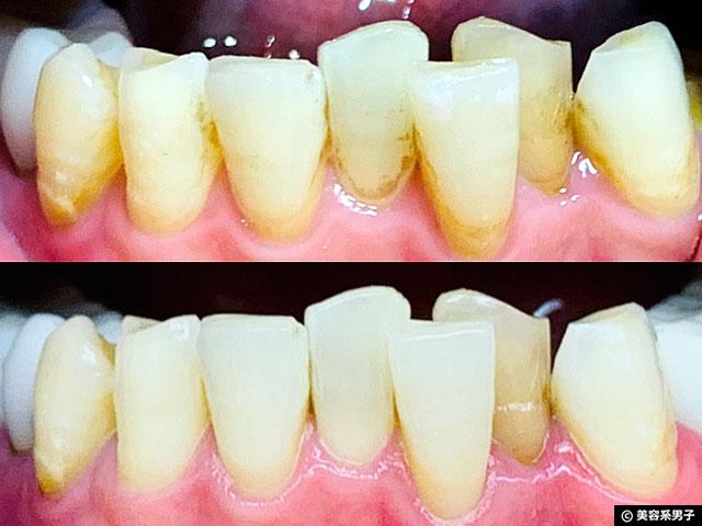 【体験12日目】歯科専用ホームホワイトニング剤 TAB-LAB CP10 口コミ-11