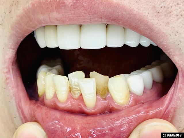 【コスパが悪い?】薬用歯みがき粉「ブレスマイルクリア」体験開始-05