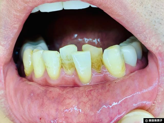【効果は嘘?】歯磨き粉「ブレスマイルクリア」2週間使ってみた結果-05