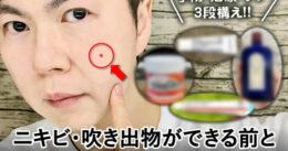 【大人ニキビ・吹き出物】できる前できた後のセルフケア-薬/化粧水