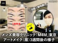 【アートメイク】芸能人御用達「M4M」メンズ眉毛3週間後の様子-東京-00