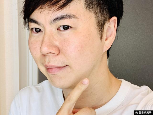 【男なら選びたい】メディカルエステ「M4M」で本気の毛穴対策-東京-12